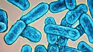 Даже колонии бактерии-легионеллы могут стать причиной неэффективной работы низкотемпературной автономной системы отопления